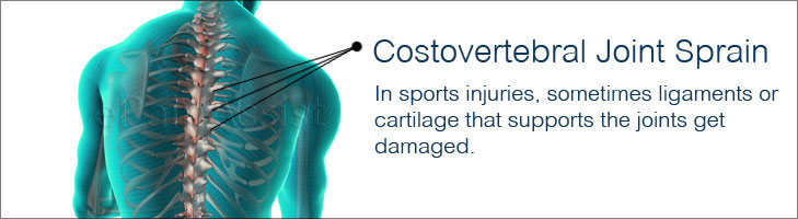 Costovertebral Joint Sprain Causes Symptoms Treatment