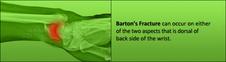 Barton's Fracture: Causes, Signs, Treatment, PT, Exercises, Investigations