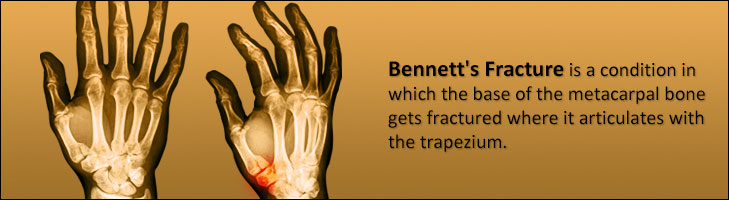 Bennett S Fracture Causes Signs Treatment Exercises