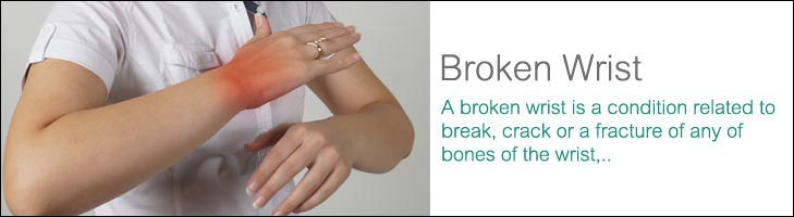 Home Remedies For A Fractured Wrist