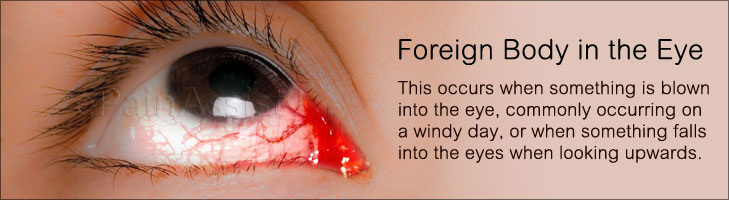 Foreign Body In The Eye Causes Symptoms Treatment