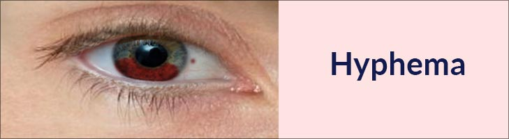 Hyphema Causes Symptoms Treatment Blood Thinners