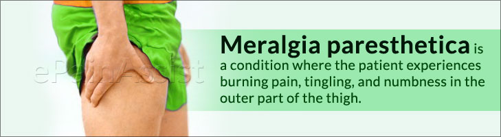 Meralgia Paresthetica: Signs, Treatment, Exercises: Hip, Quadriceps, Lunges, Resistance Bands