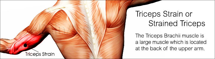 What is Triceps Strain-Know its Symptoms, Causes and Treatment!