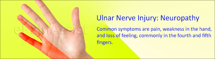 Ulnar Nerve Injury: Neuropathy