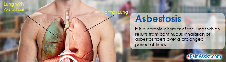 Asbestosis: Treatment, Home Remedies, Prevention, Causes
