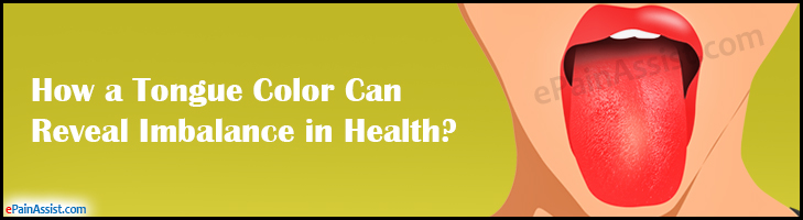 How a Tongue Color Can Reveal Imbalance in Health?