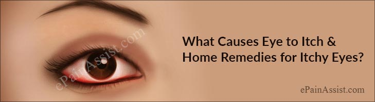 What Causes Eye to Itch and Home Remedies for Itchy Eyes