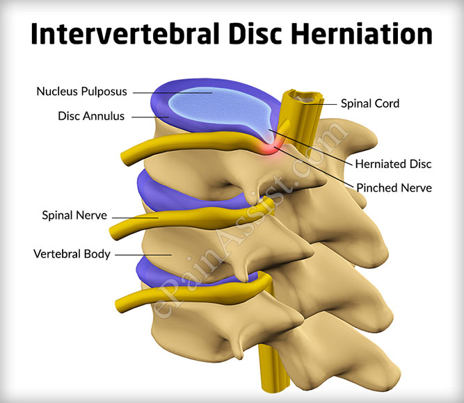 Intervertebral Disc Herniation