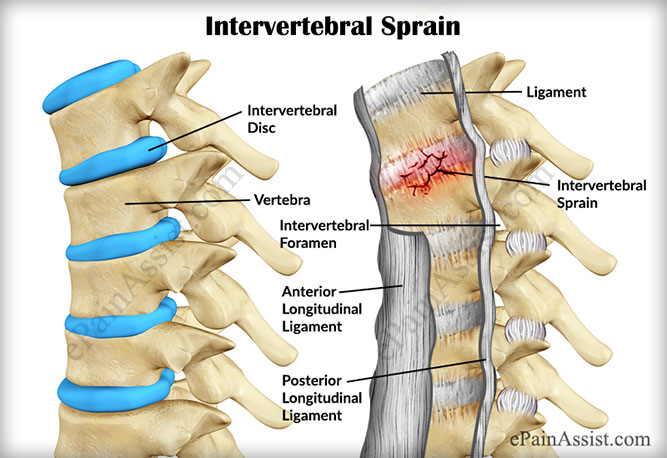 Intervertebral Sprain Know Its Causes And Physiotherapist Treatment
