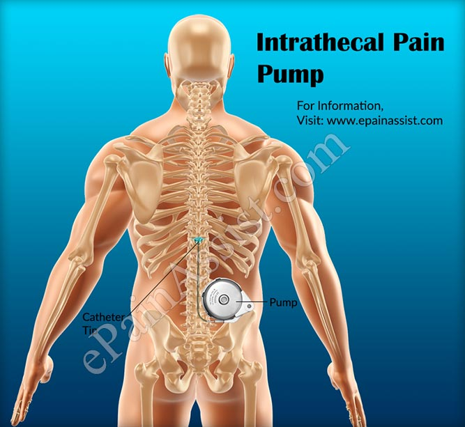 Intrathecal Pain Pump Cost Of Surgery And Refill