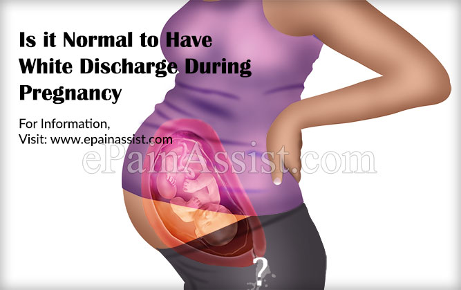 Is it Normal to Have White Discharge During Pregnancy?