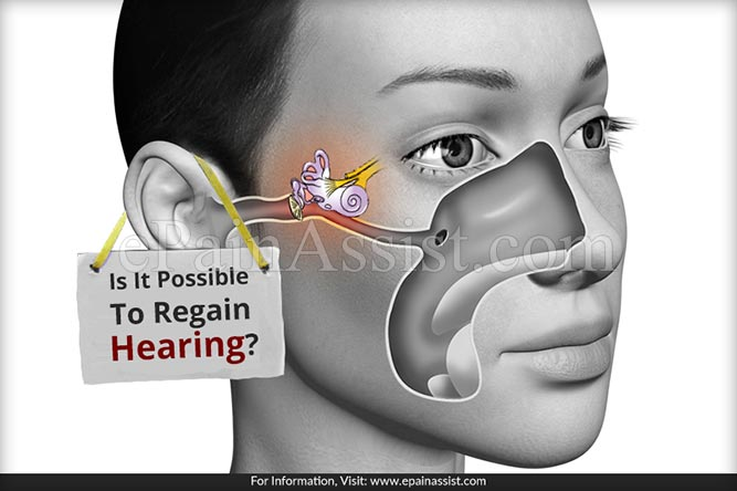Is It Possible To Regain Hearing?