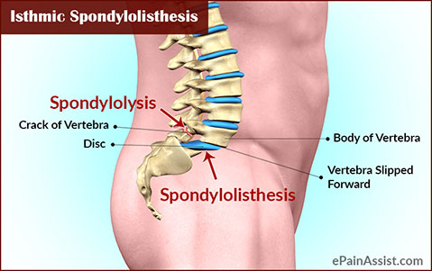 Spondylolisthesis risk factors