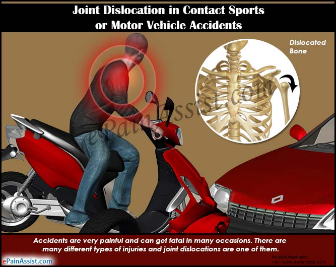 Joint Dislocation in Contact Sports or Motor Vehicle Accidents