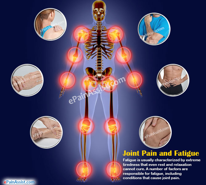 Joint Pain and Fatigue