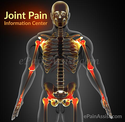 Joint Pain Information Center: Avascular Necrosis, Pseudogout, Palindromic Rheumatism