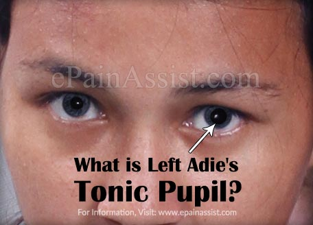 What is Left Adie's Tonic Pupil?