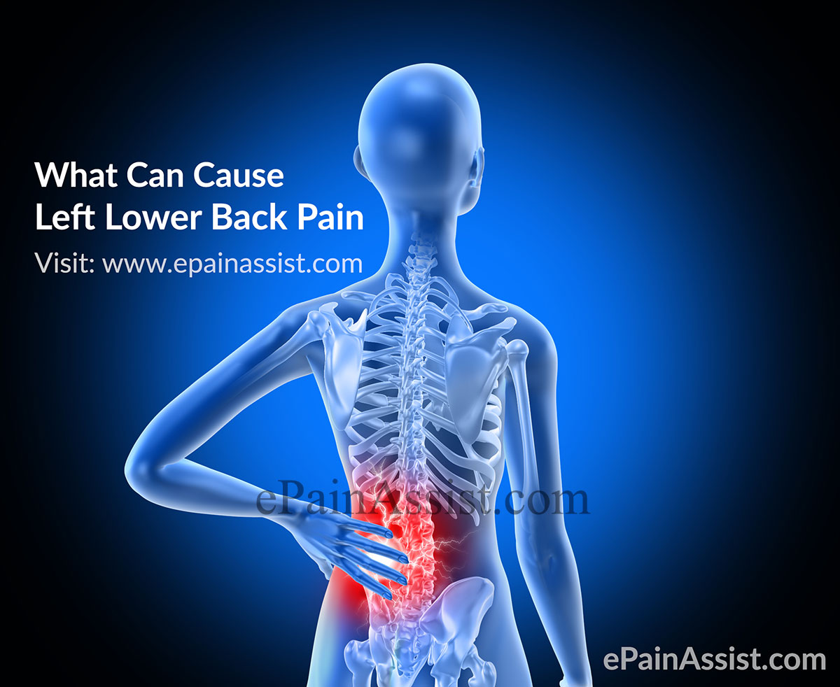 What Can Cause Left Lower Back Pain|Symptoms|Treatment - photo#24