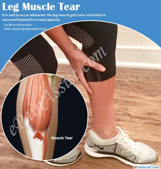Leg Muscle Tear or Injury