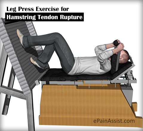 Leg Press Exercise for Hamstring Tendon Rupture