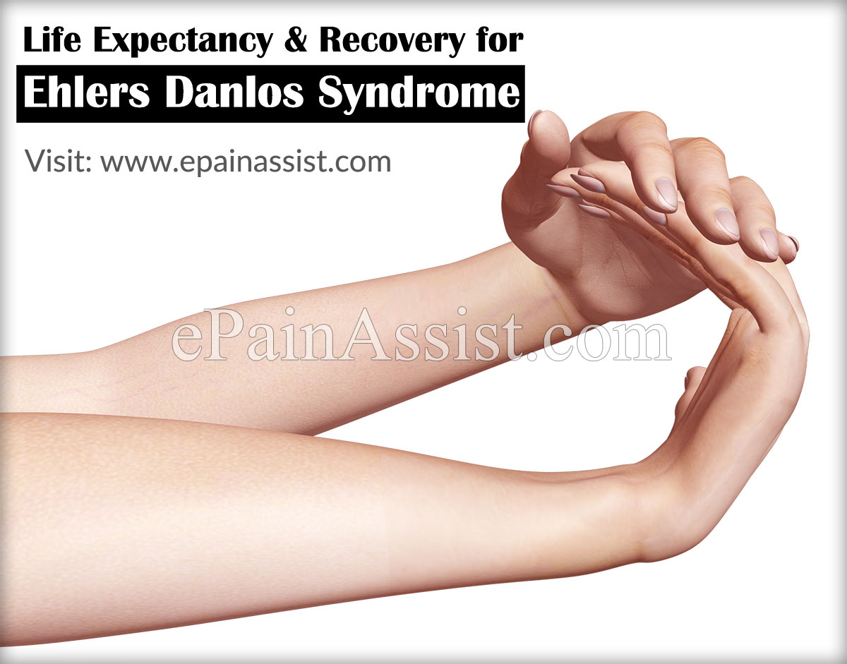 Life Expectancy for Ehlers Danlos Syndrome or EDS