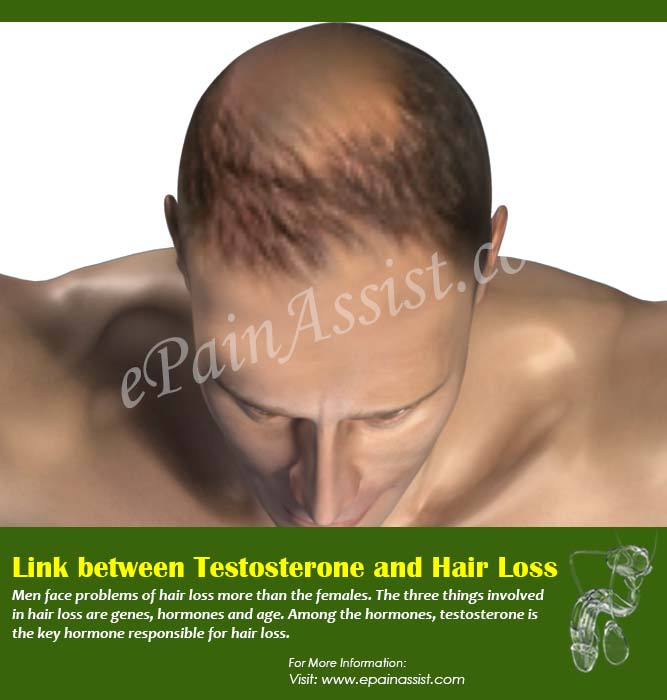 Link between Testosterone and Hair Loss