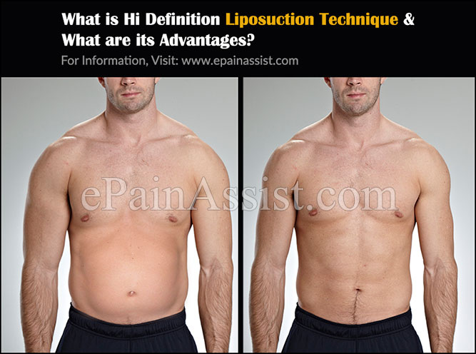 What is Hi Definition Liposuction Technique?
