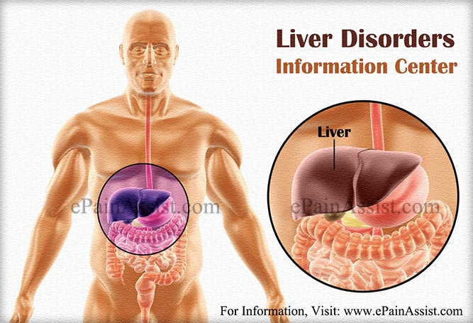Liver Disorders Information Center