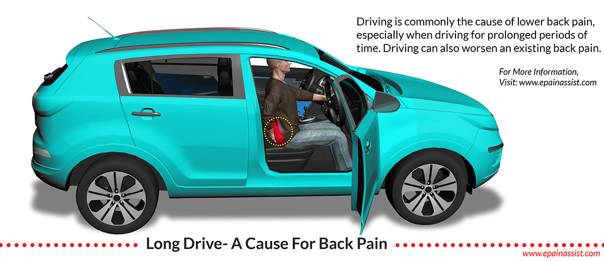 Back Pain Due to Long Drive