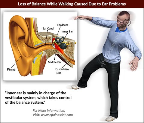 Loss of Balance While Walking Caused Due to Ear Problems and Vertigo
