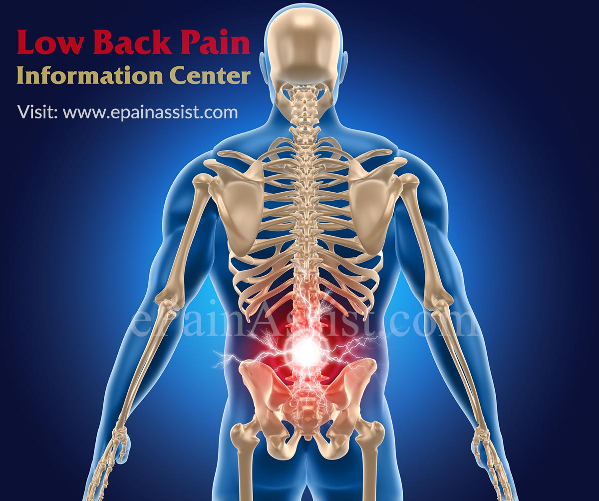 Low Back Pain Information Centerbaastrup Syndromelumbar. Christmas Savings Account El Mirage Locksmith. How Much Can I Contribute To Sep Ira. Social Media Marketing Budget. Computer Engineers Job Description. Financial Advisors In Michigan. Ashford Watch Promo Code Tinnitus Test Online. Washer And Dryer Service Closing Costs Points. Carpet Cleaning Port St Lucie Fl