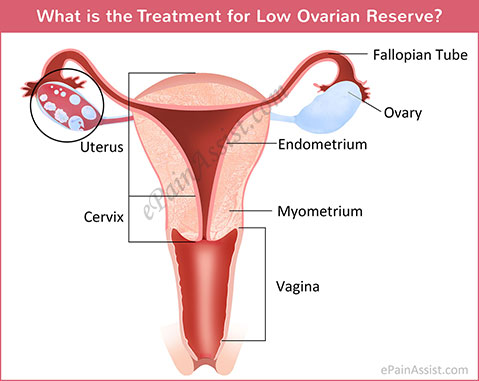 What is the Treatment for Low Ovarian Reserve?
