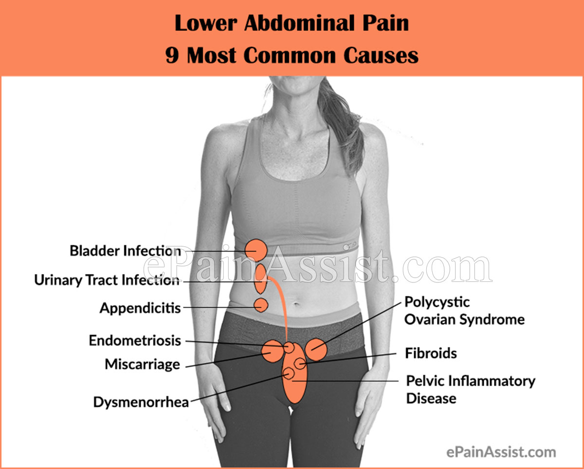 Lower Abdominal Pain 9 Most Common Causes Symptoms Investigations Treatment