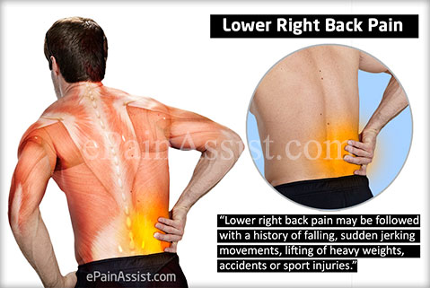 lower right back paincausessymptomstreatment