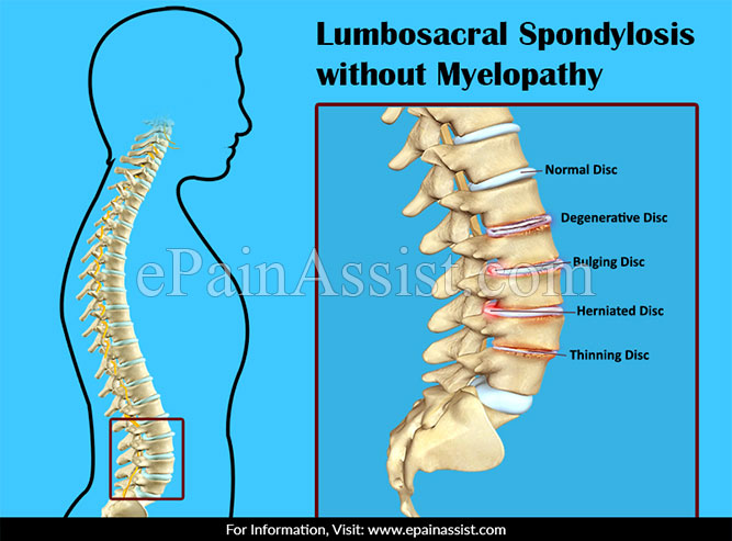 Lumbosacral Spondylosis without Myelopathy