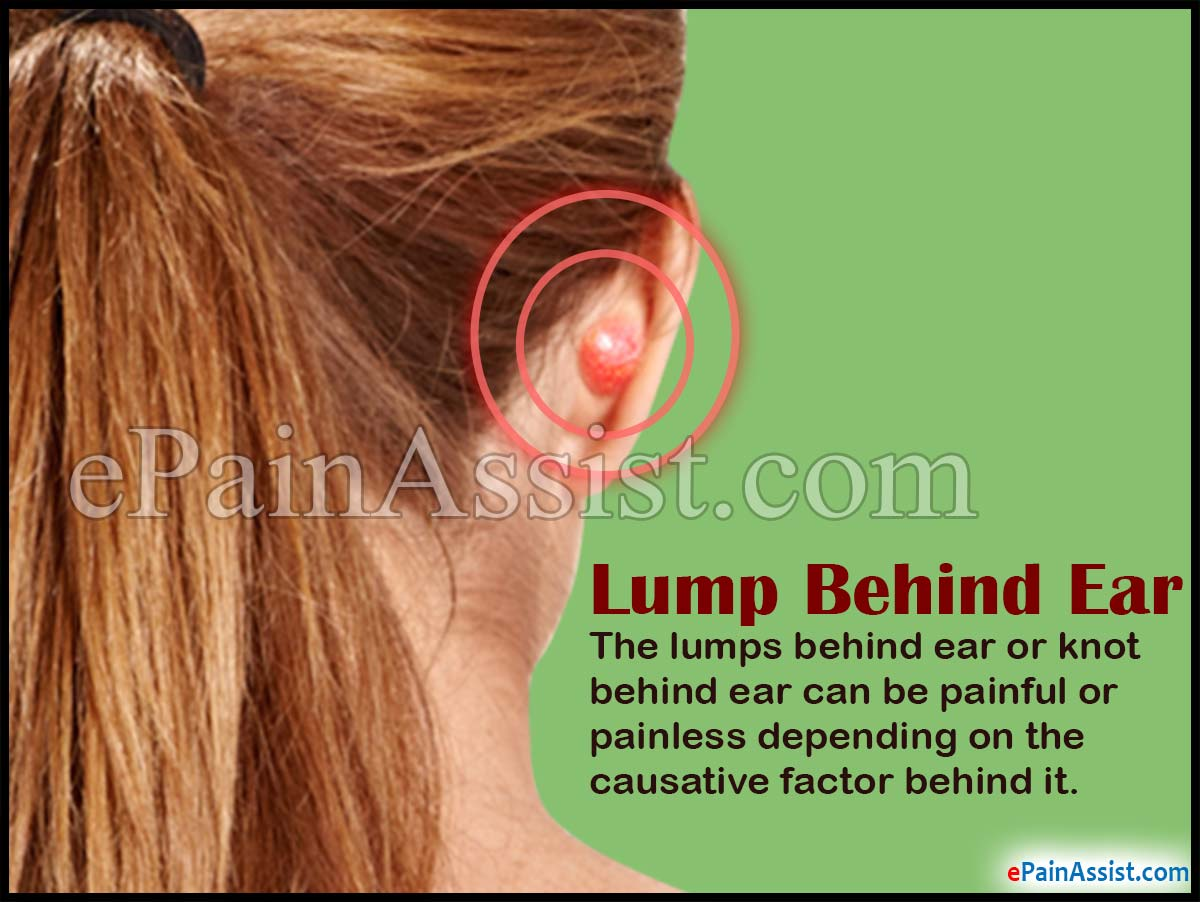 Lump Behind Ear or Knot Behind Ear