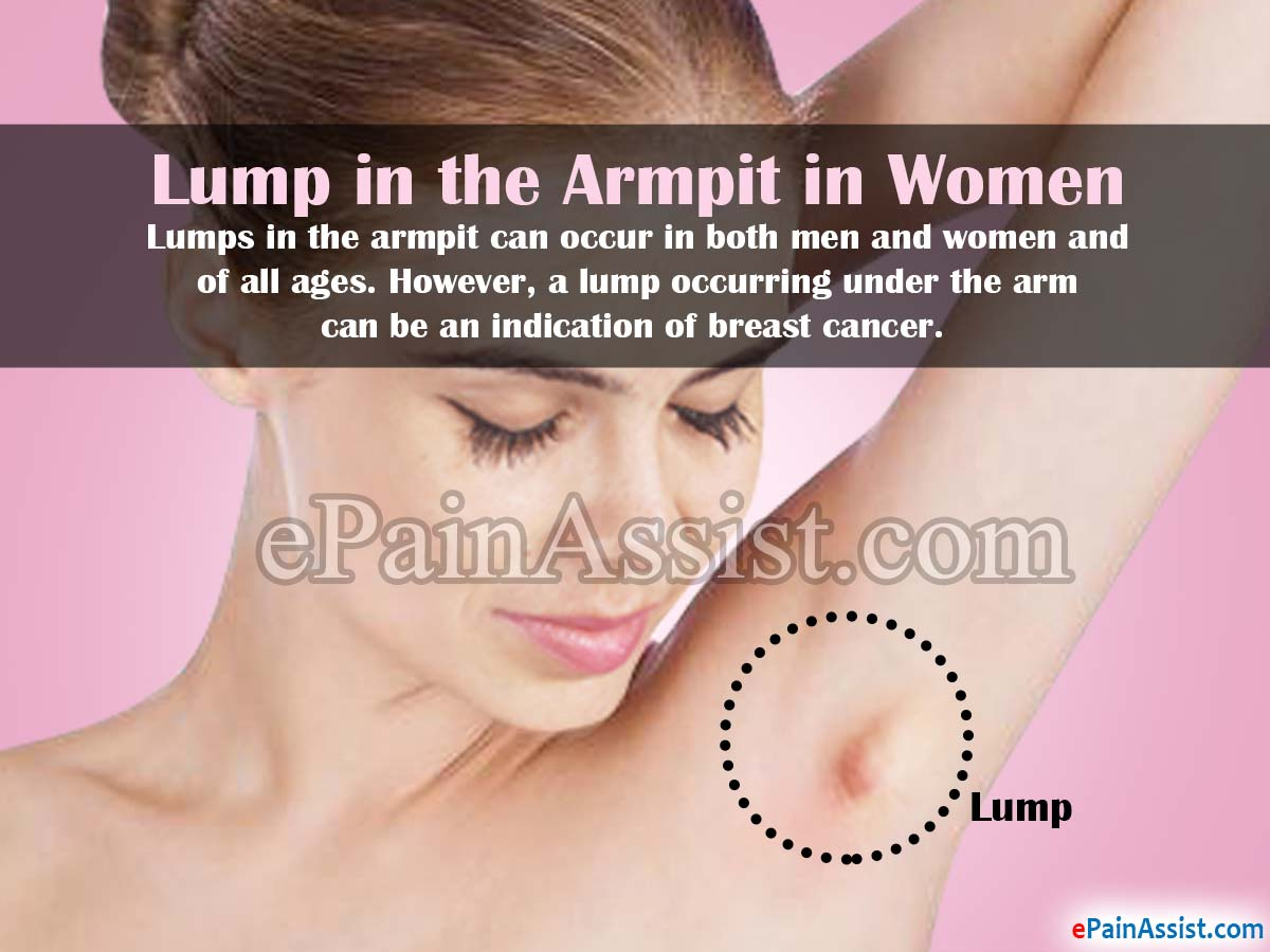 Lumps in the Armpit in Women