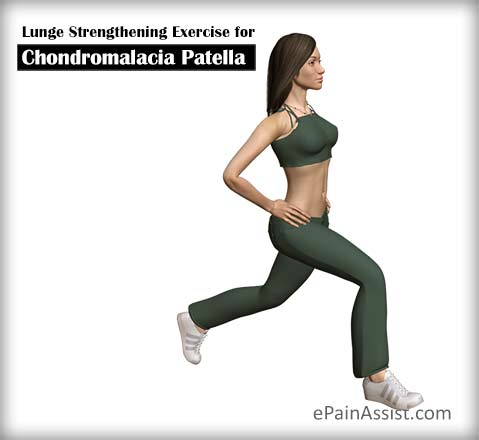 Lunge Strengthening Exercise for Chondromalacia Patella (CMP)