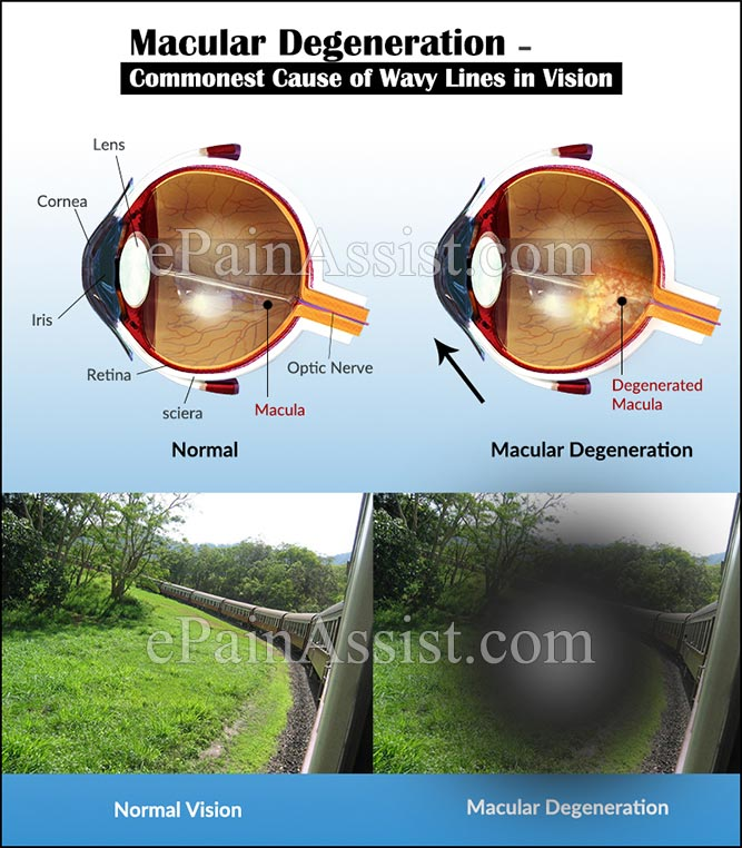 Macular Degeneration – Commonest Cause of Wavy Lines in Vision