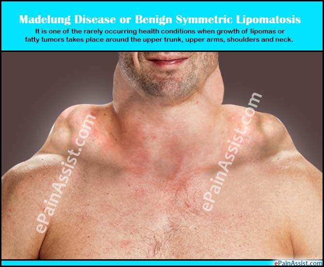 Lipoma Causes, Symptoms, Treatments, and More - WebMD