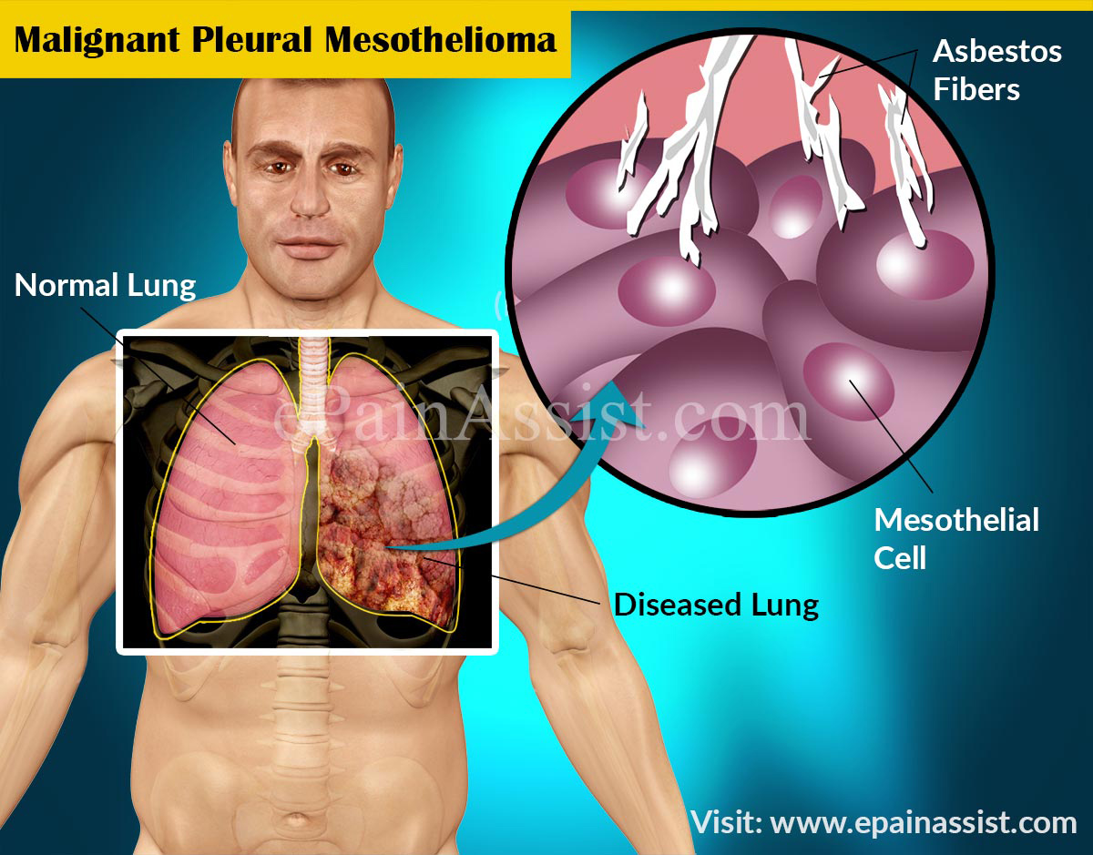 Risk Factors for Malignant Pleural Mesothelioma