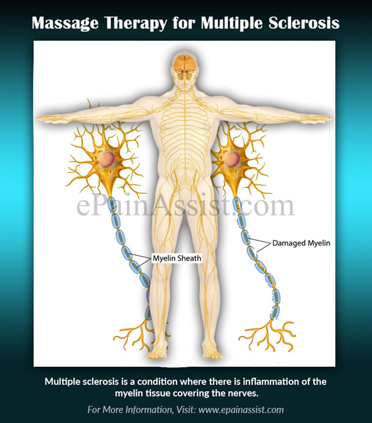 Massage Therapy for Multiple Sclerosis (MS)|Benefits- Pain, Stress ...