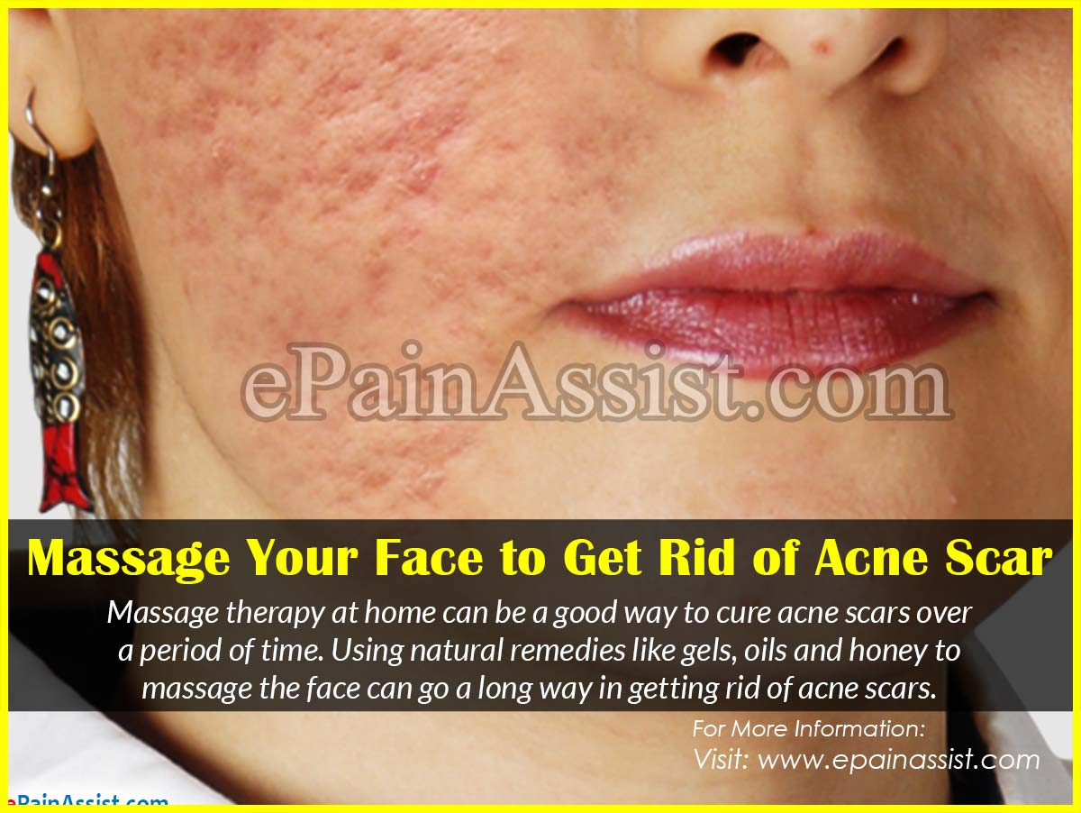 Massage Your Face to Get Rid of Acne Scars