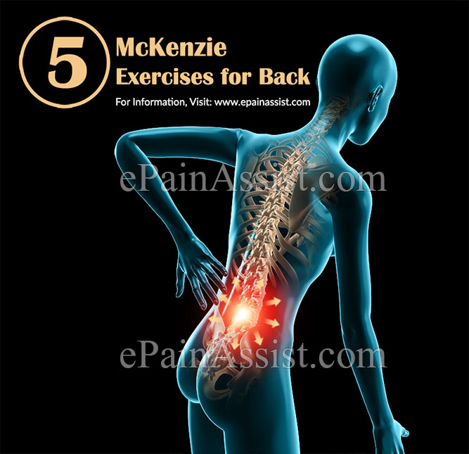 5 McKenzie Exercises for the Back