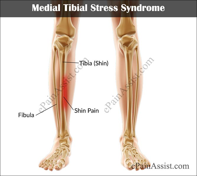 Medial Tibial Stress Syndrome or Shin Splints