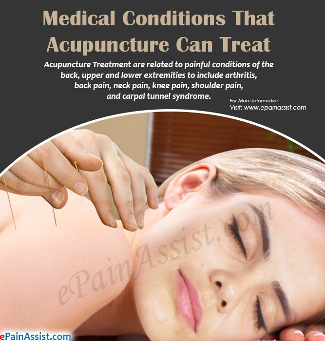 Medical Conditions That Acupuncture Can Treat