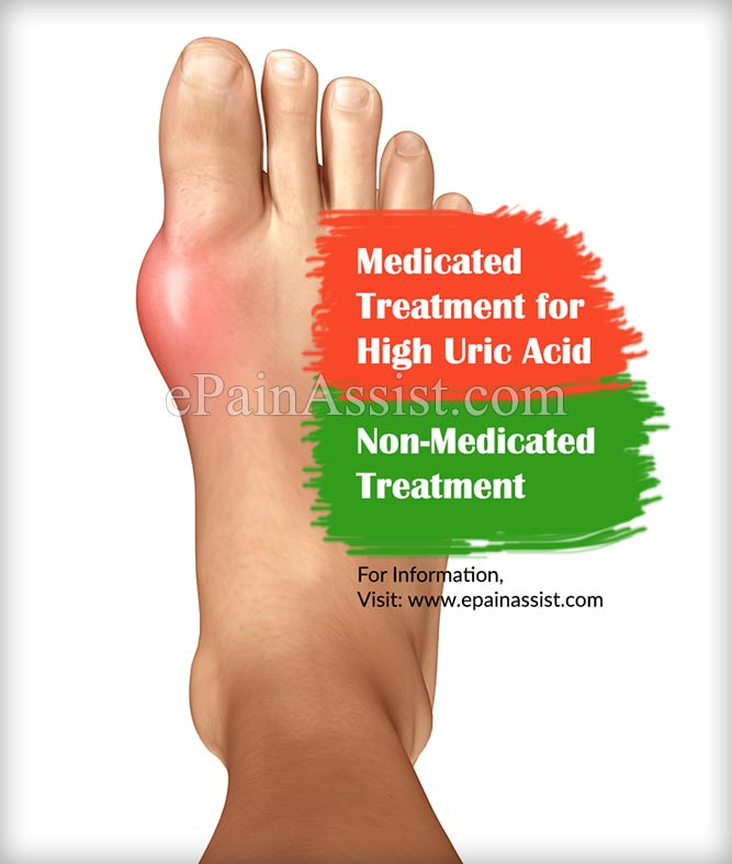 Medicated & Non-Medicated Treatments for High Uric Acid