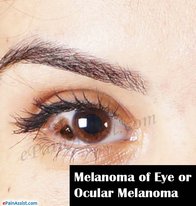 Melanoma of Eye or Ocular Melanoma