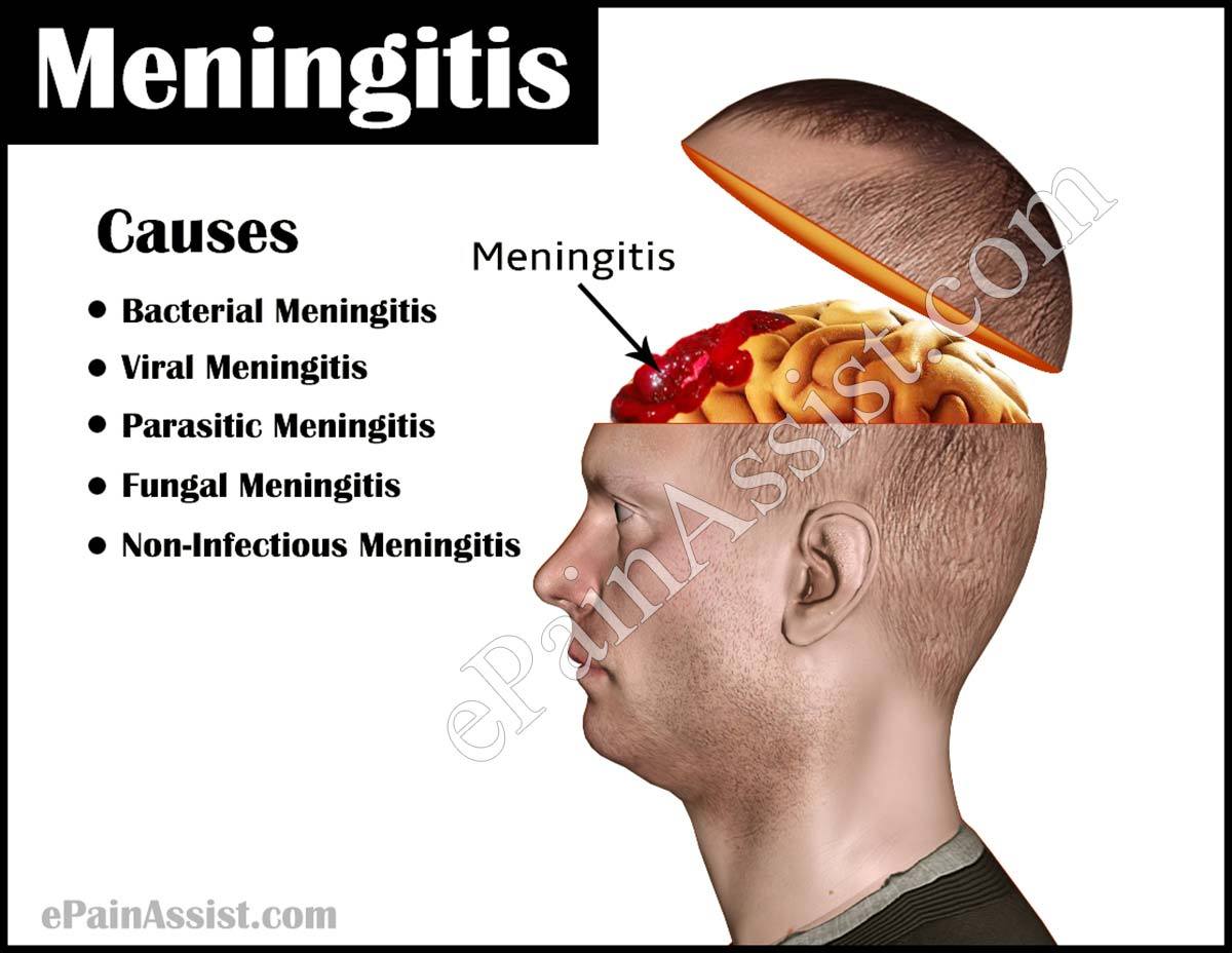 Meningitis: Causes, Types, Risk Factors, Clinical Features, Diagnosis, Treatment, Prevention, Vaccines